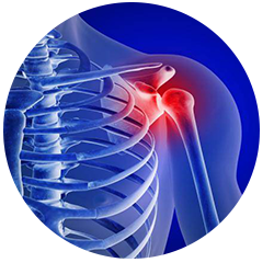 Chiropractor for Rotator Cuff Injuries